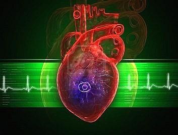 Tercera definici n universal del infarto de miocardio for Universal definicion