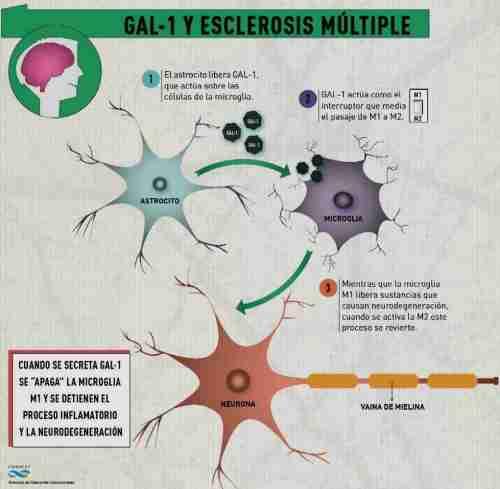Esclerosis_multiple_GAL1-bis