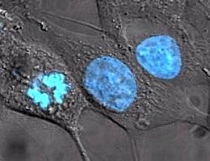 Hela-celulas