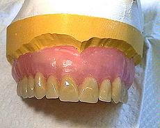 protesis-dental_actual