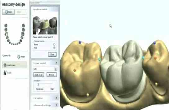 Protesis_CAD_CAM