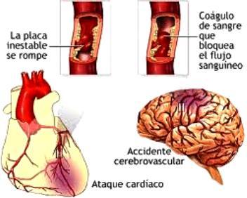 ACV_coagulo