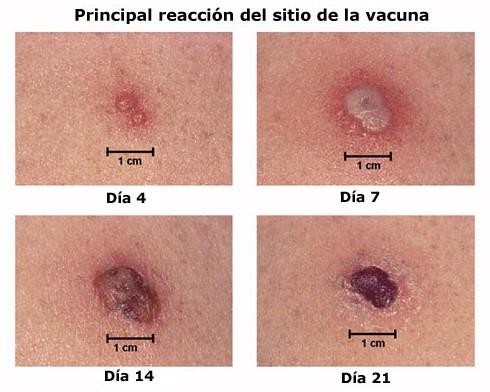 viruela_vacuna