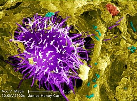 Imagen de microscopio de la bacteria E. coli.