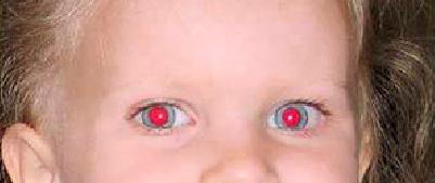 foto-ojos-rojos