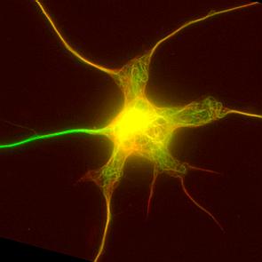 Imagen de microscopía de una neurona de ratón en cultivo con la red de microtúbulos (verde y rojo). El axón, en verde más intenso, es la extensión nerviosa que tiene más cantidad de microtúbulos modificados. [Carlos Sánchez-Huertas / IRB Barcelona]