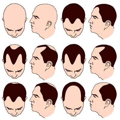 tipos de alopecía